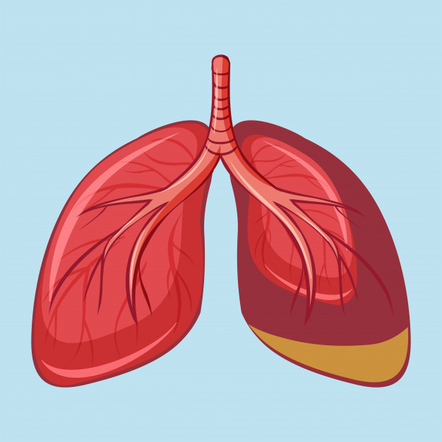 Mesothelioma lungs
